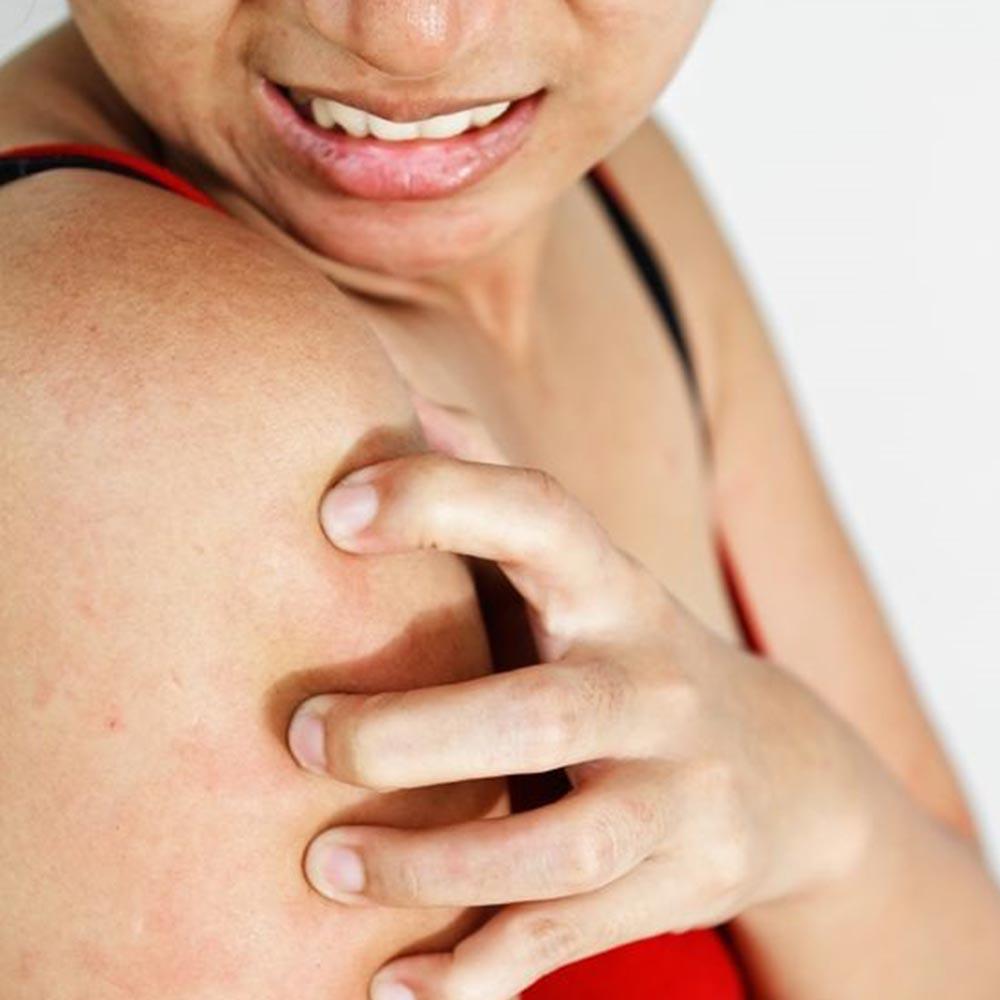 skin-disorders